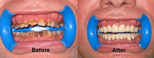 Before-and-After Cosmetic Dental Work