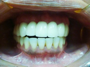 Dental Implants-After
