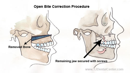Open Bite Correction Jaw Surgery - Tijuana,Mexico