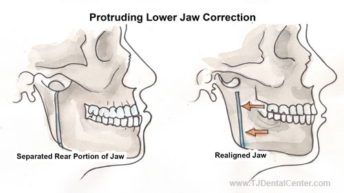 Protruding Lower Jaw Correction - Tijuana, MX