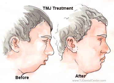 TMJ Treatment - Before-and-After