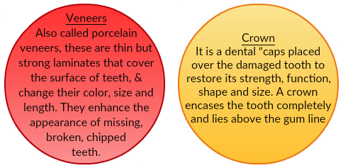 Dental Veneers and Crowns in US-Mexico Border